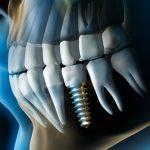 Quanto dura un impianto dentale: i fattori in gioco