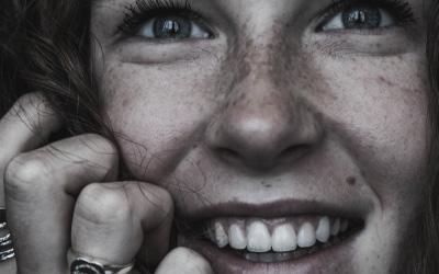 Macchie bianche sui denti: cosa sono?
